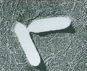 クロストリジウムボツリヌス